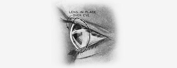 вид контактной линзы