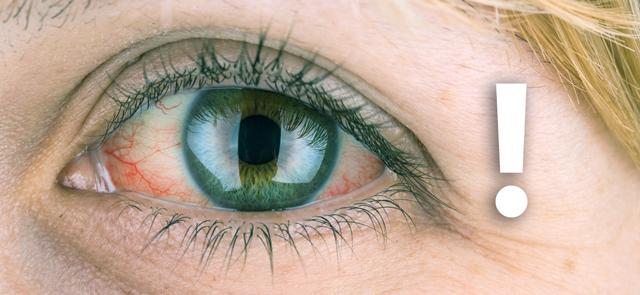 Не нарушайте сроки замены контактных линз для глаз